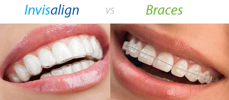 How Long Do Braces Last Things To Know Before You Buy